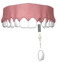 implantaat kies onderkaak afbeelding